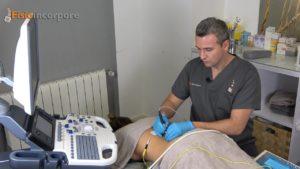 Epi Fisioterapia Discopatía Degenerativa